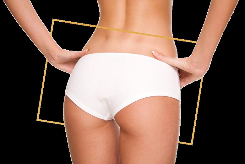 Avoir des fesses plus volumineuses ou plus rebondies. Implants fessiers par le docteur Florent Bonnet Chirurgien esthétique fesses à Dijon Bourgogne.