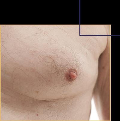 La gynécomastie, intervention menant réduire la poitrine chez l'homme par la docteur Florent Bonnet.