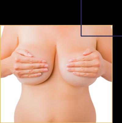 Réduction d'un volume et du poids de seins trop important. L'hypertrophie mammaire.