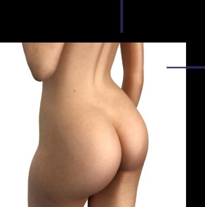 Pose de prothèses de fesses Docteur Florent Bonnet Chirurgien esthétique des fesses.