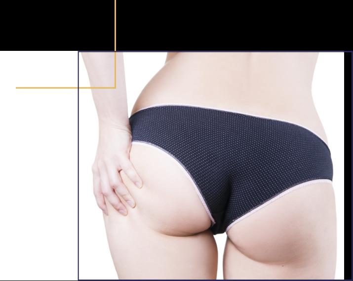 Augmentation du volume des fesses par transfère de graisses. Docteur Florent Bonnet Chirurgien esthétique.