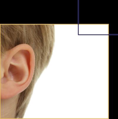 Recoller des oreilles décollées chez l'enfant et chez l'adulte. Consultation par le Docteur Florent Bonnet chirurgien esthétique à Dijon, Bourgogne.