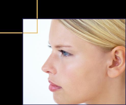 Bosse sur le nez, nez trop grand, nez crochu. La rhinoplastie par le docteur Florent Bonnet Chirurgien esthétique à Dijon, Bourgogne.
