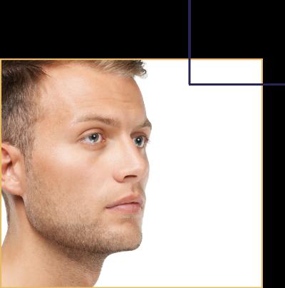 Rendre le nez plus droit et ainsi mieux respirer grâce à la septoplastie. Une intervention chirurgicale par le docteur Florent Bonnet Chirurgien esthétique à Dijon.